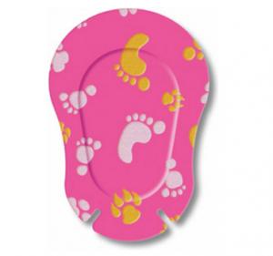 Окклюдеры детские Ортопад для девочек | Софт Следы